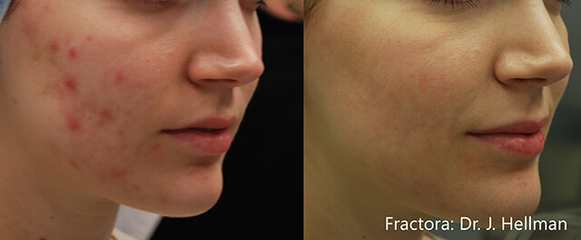acne littekens verwijderen fractora